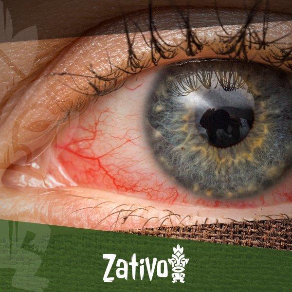 53774f9100 Zativo - Occhi Rossi e Cannabis: Perché si Verifica e Come Comportarsi